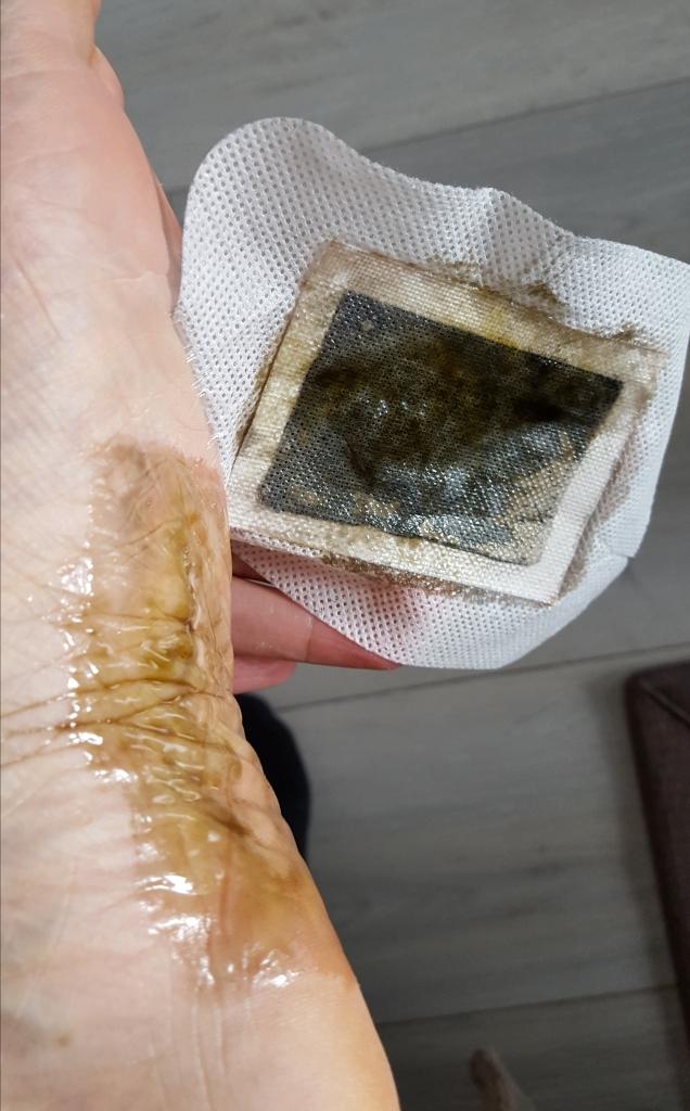 patch-detox-pied-messegue-avis-bullesdetestschezflorette (5)